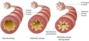 12 Best Herbal Cures For Asthma In Nigeria