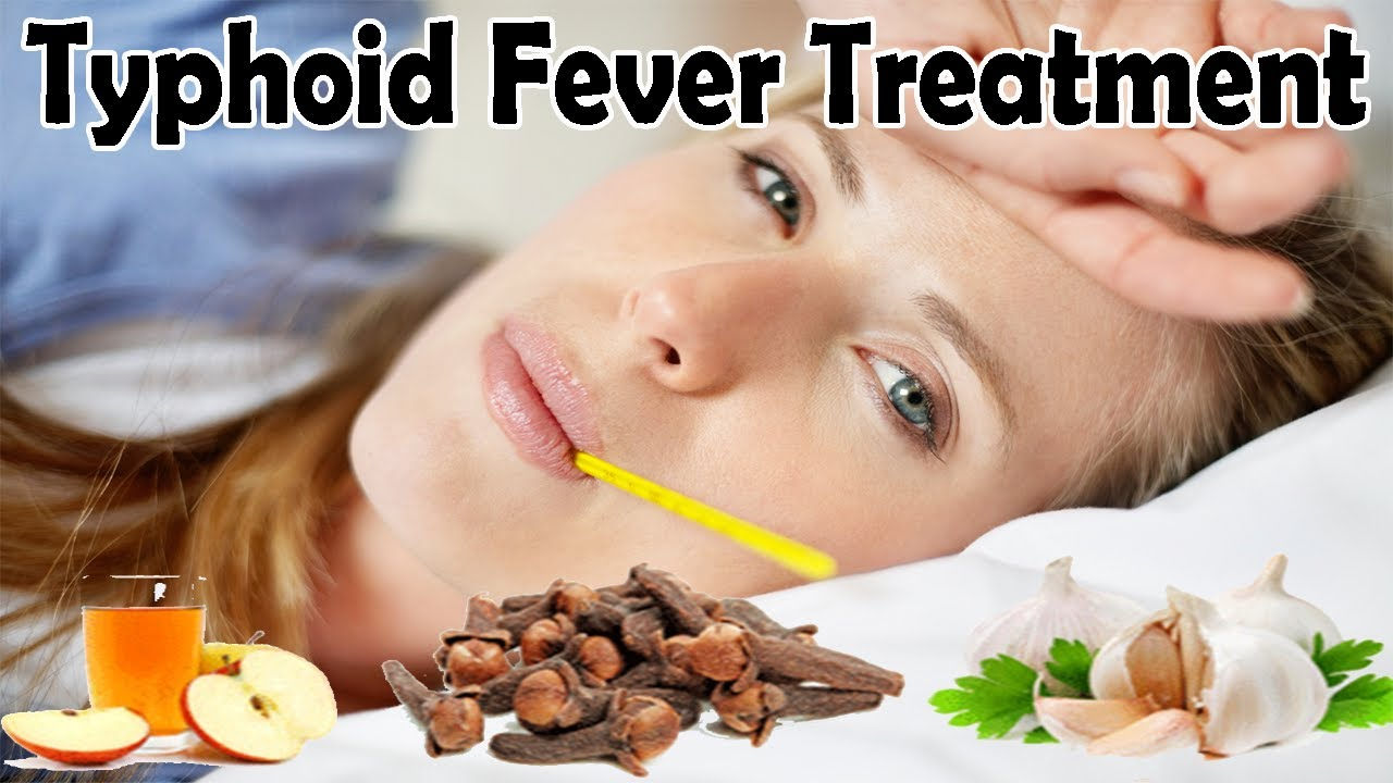 Herbal Treatments for Typhoid Fever
