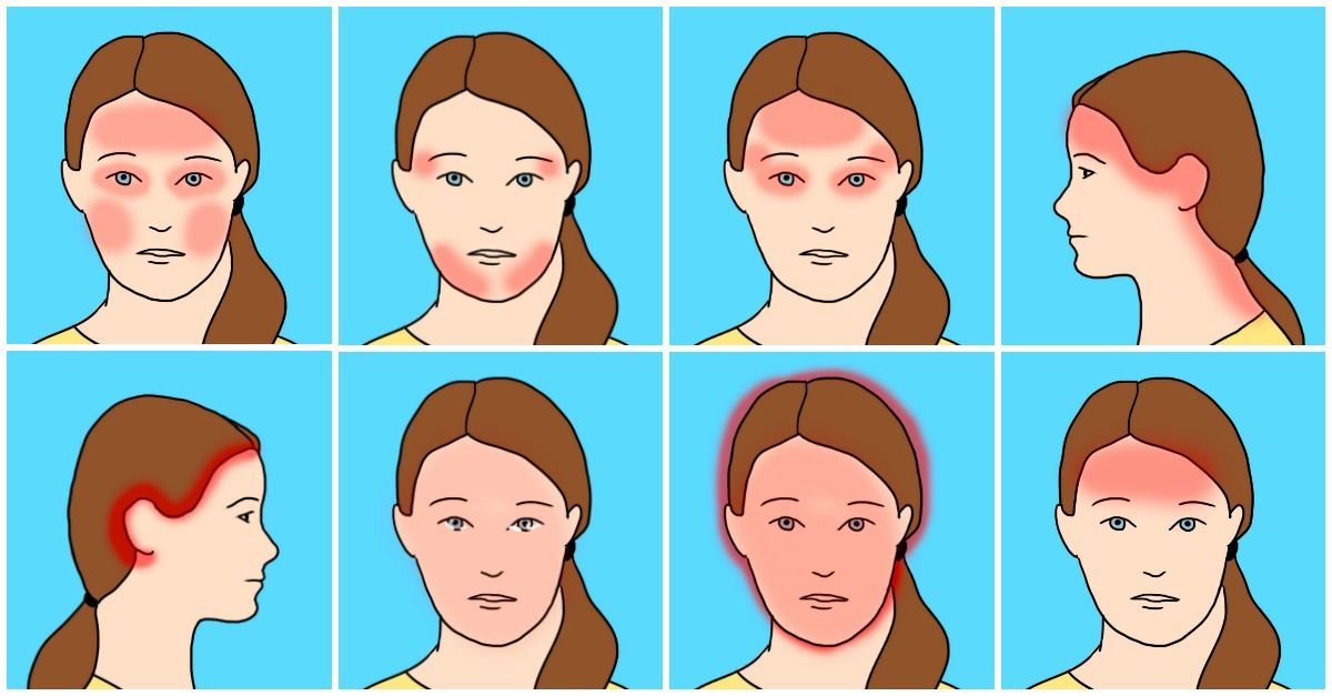 Herbal and natural remedies for headache