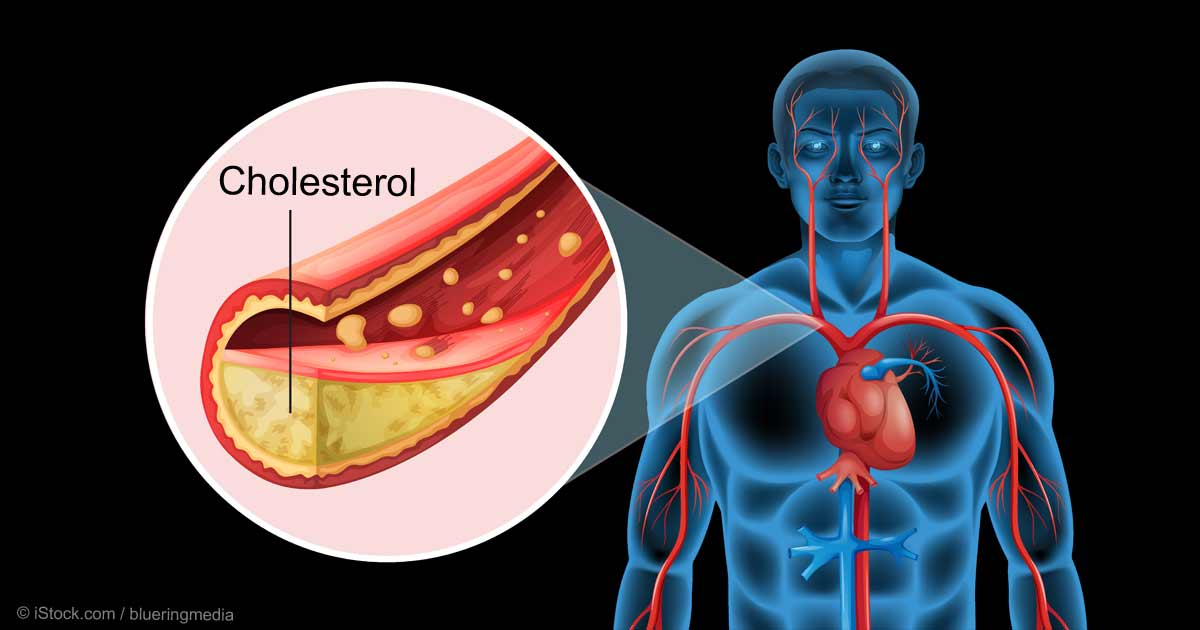 Natural Remedies for Hypercholesterolemia